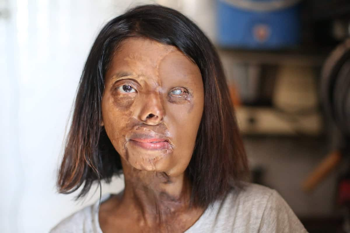 https://www.thelondoneconomic.com/wp-content/uploads/2017/10/acid-attack-vic-56952.jpg