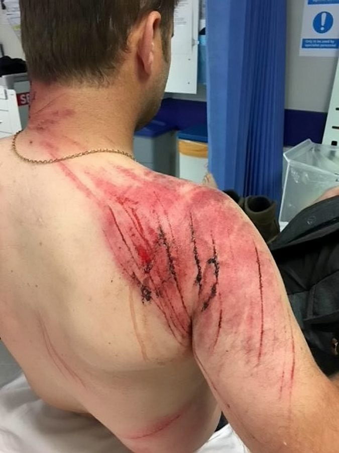 A taxi driver has described how he almost died after being trampled by an angry herd of rampaging cows as he was out walking his dog.  Adam Delves, 38, was left badly injured after he was repeatedly stamped on and tossed into the air by the stampeding animals on a public pathway.