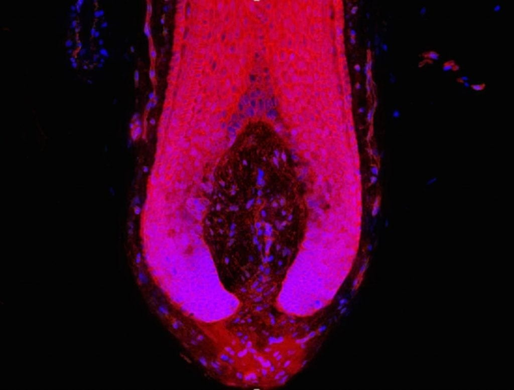 Immunofluorescence of β-catenin protein and cell nuclei in the human hair follicle bulb the command center for maintaining hair growth