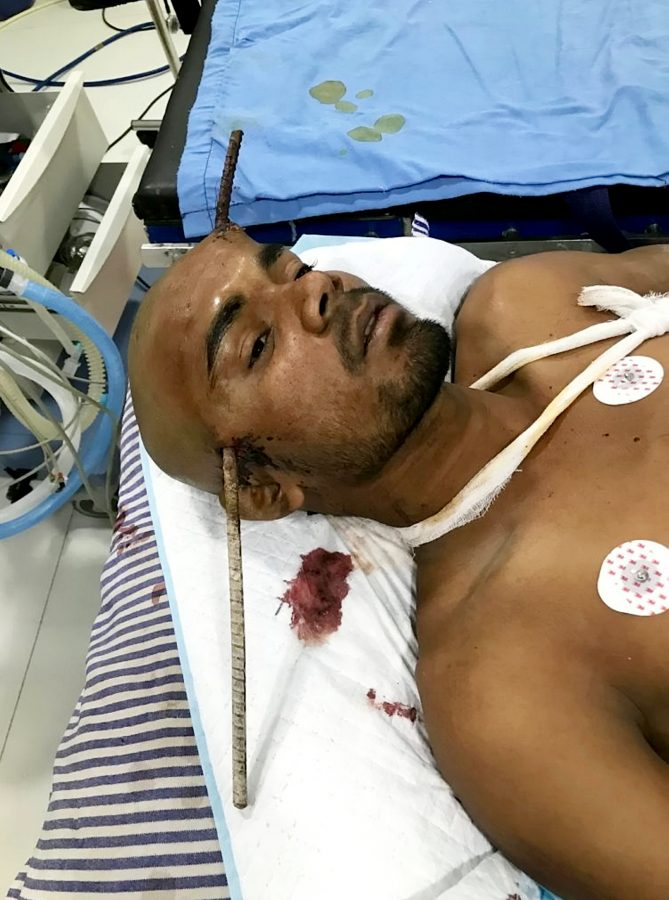 Construction worker Sanjay Bahe fell down a well and an iron rod pierced straight through his head. (c) SWNS